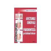 Afectiuni gingivale si parodontoza pe intelesul tuturor