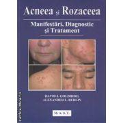 Acneea si rozaceea : manifestari, diagnostic si tratament ( editura: M.A.S.T , autor: David J. Goldberg , Alexander L. Berlin ISBN 978-606-649-000-9 )